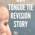 Tongue Tie Revision