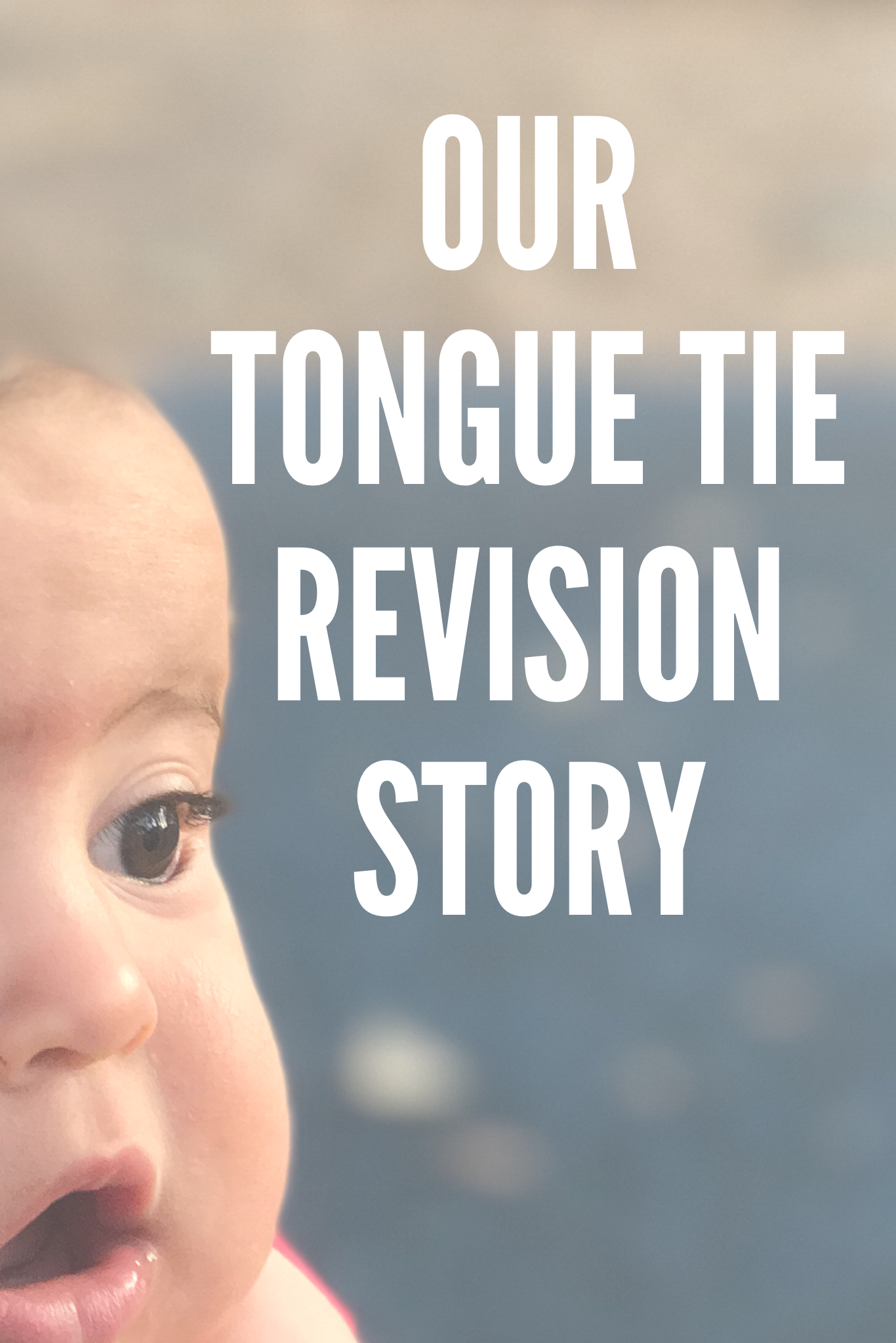 Our Tongue Tie Revision Story - Grazed & Enthused